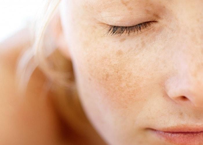 Sở hữu làn da trắng sáng với 6 cách trị nám sau sinh tại nhà