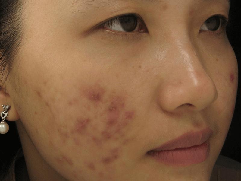 cach-tri-seo-tham-den